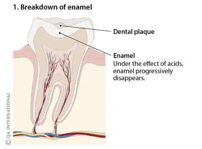Cavities, when sugar attacks teeth | Visual Dictionary