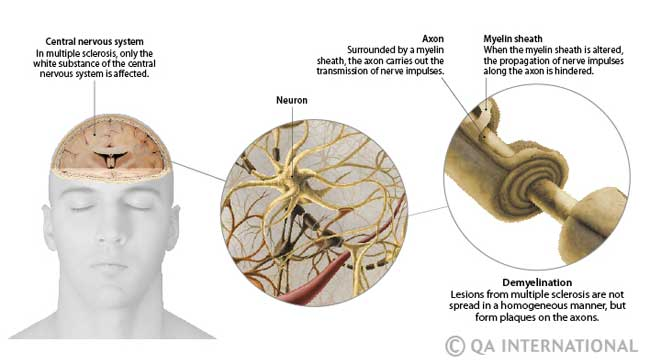 Muscular sclerosis in spanish
