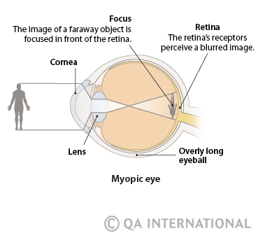 Ametropia When Vision Is Blurred Visual Dictionary