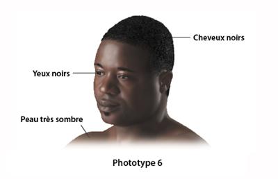 Les phototypes dictionnaire visuel - Coup de soleil tache blanche ...